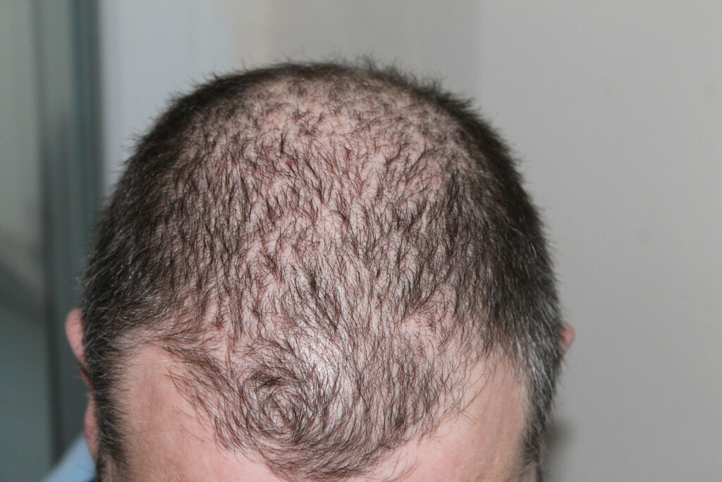 Obesity and baldness